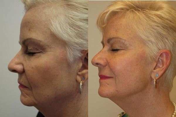 Thread Lift Treatment Before and After Manchester