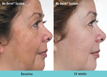 beforeafter nuderm 1