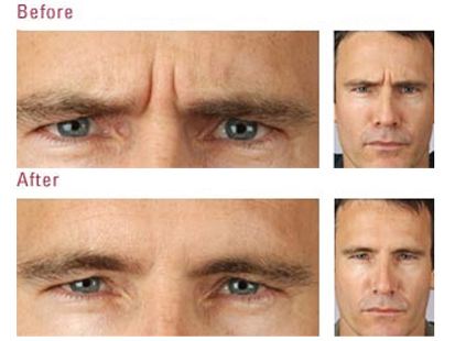 botox men before after