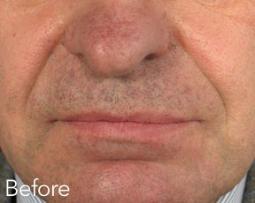 Dermal Fillers Men Before