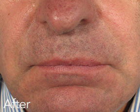 Dermal Fillers Men after