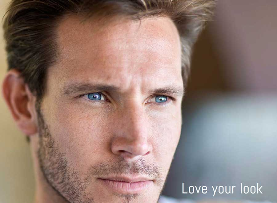 dermal fillers men