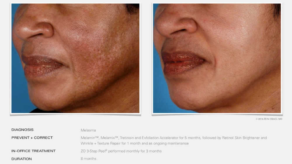 ZO Skin Health Manchester - Before-After